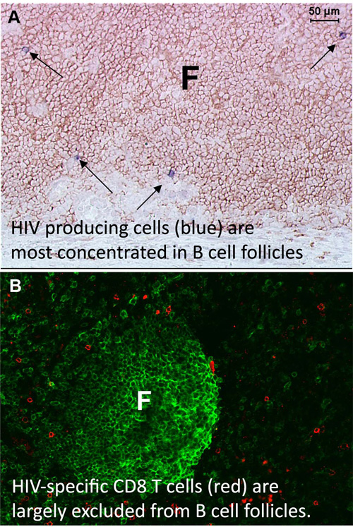 Image of HIV cells in B cell follicles